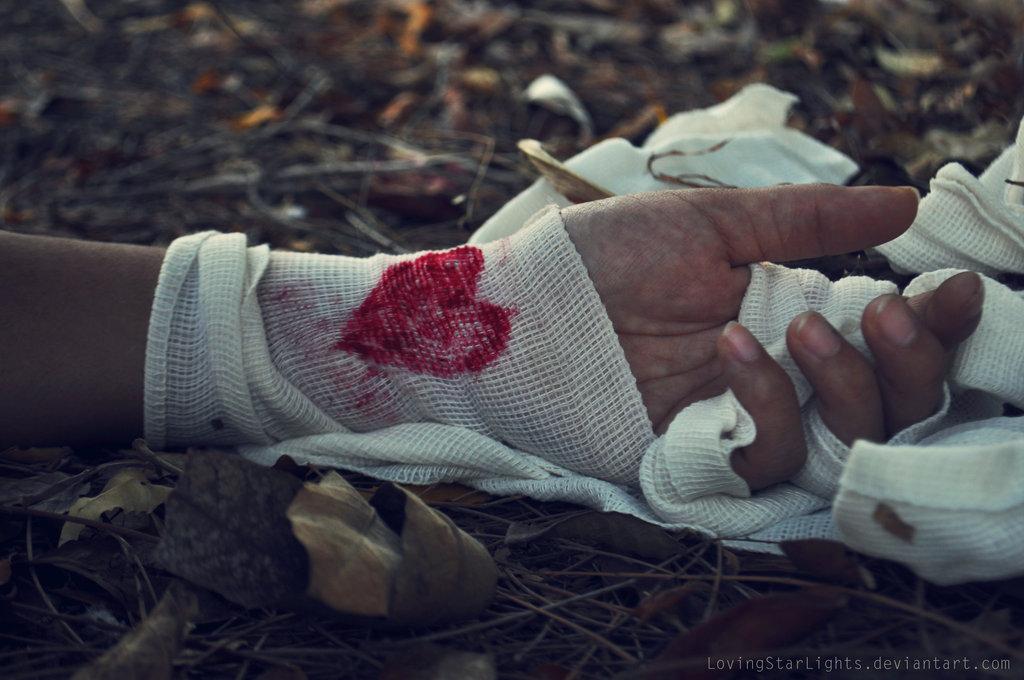wound_final